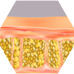 cellulite behandlung nachher