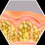 cellulite behandlung vorher