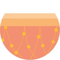 diamond cellulite behandlung leipzig 2