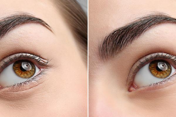 Augenlidstraffung-leipzig-vorher-nachher