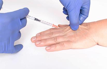 lipofilling an der hand